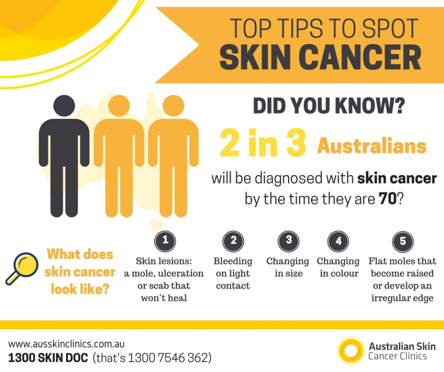 The Importance Of Early Detection Australian Skin Cancer Clinics Charlestown